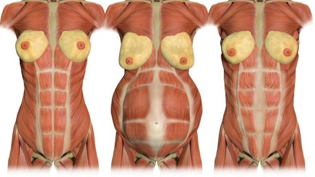 Cos'è la diastasi addominale in gravidanza?