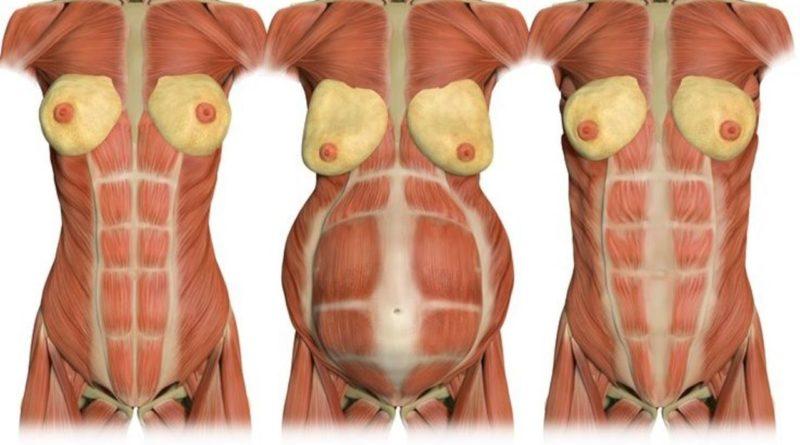 diastasi addominale in gravidanza